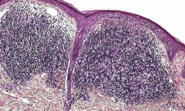 Granuloma inguinale: cos'è e come curarlo